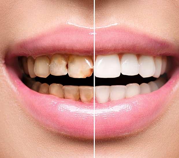 Hutto Dental Implant Restoration