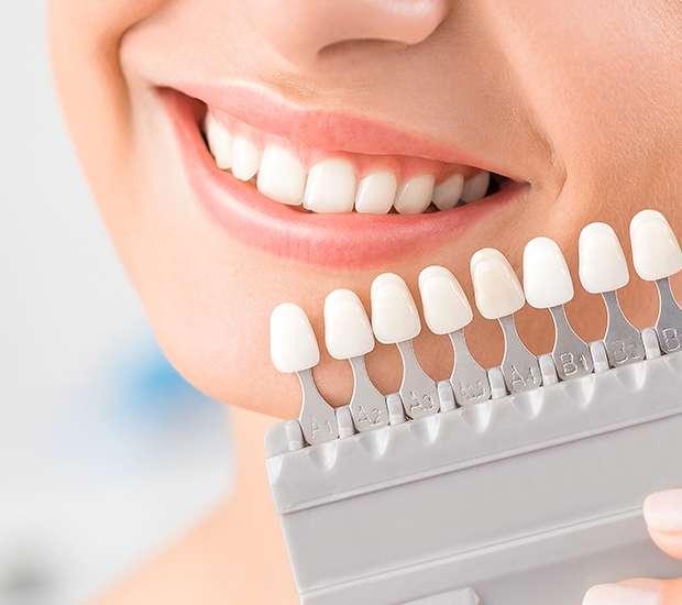 Hutto Dental Veneers and Dental Laminates